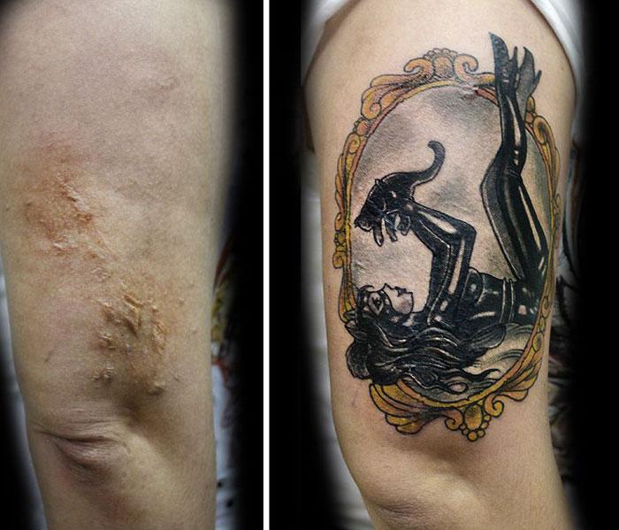 tatuaje sobre cicatrices 3