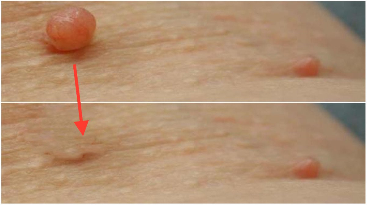 Eliminar una verruga con hilo