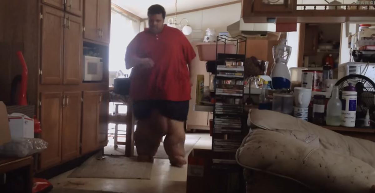 tenia obesidad morbida y decidio perder peso radicalmente