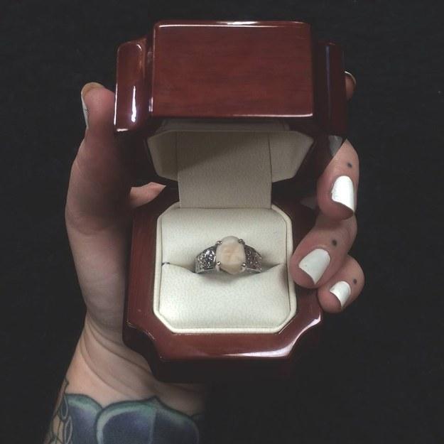 Le regala un anillo de compromiso fabricado con su muela del juicio 2