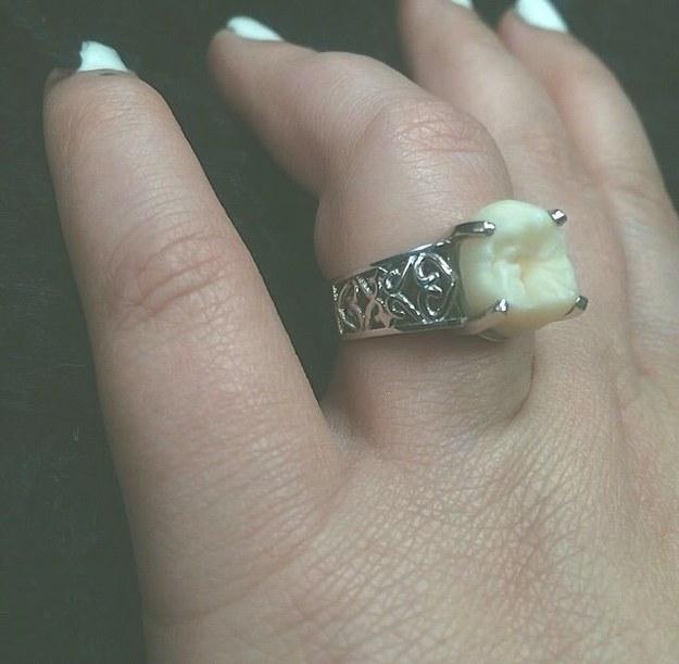 Le regala un anillo de compromiso fabricado con su muela del juicio 5