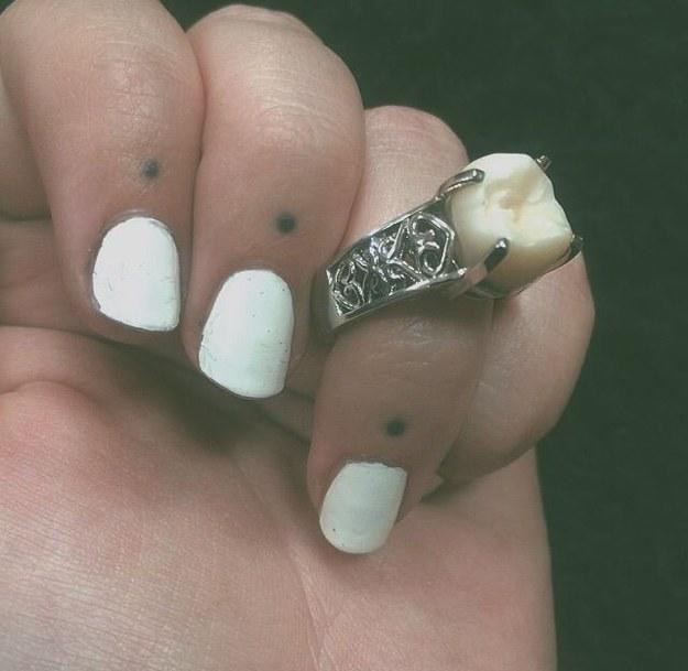 Le regala un anillo de compromiso fabricado con su muela del juicio 6