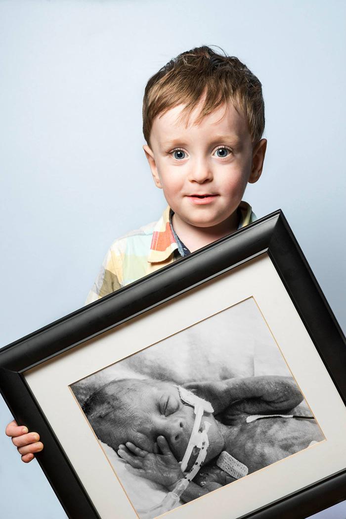 fotos de bebes prematuros antes y ahora 1