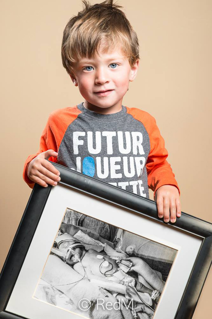 fotos de bebes prematuros antes y ahora 12