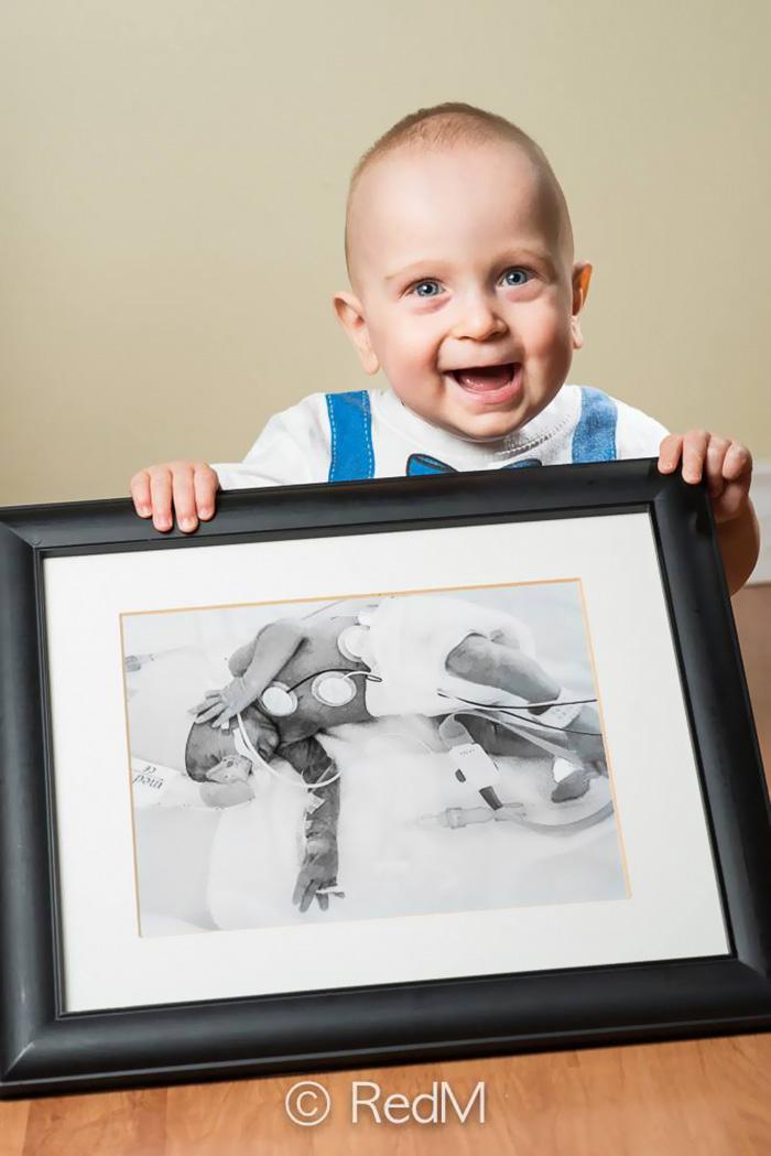 fotos de bebes prematuros antes y ahora 13