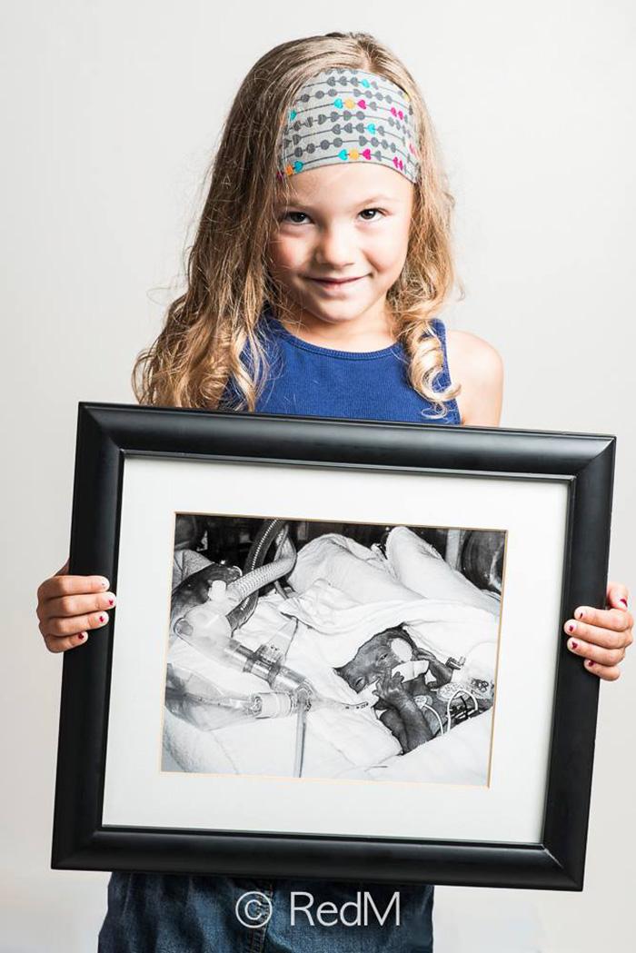 fotos de bebes prematuros antes y ahora 15