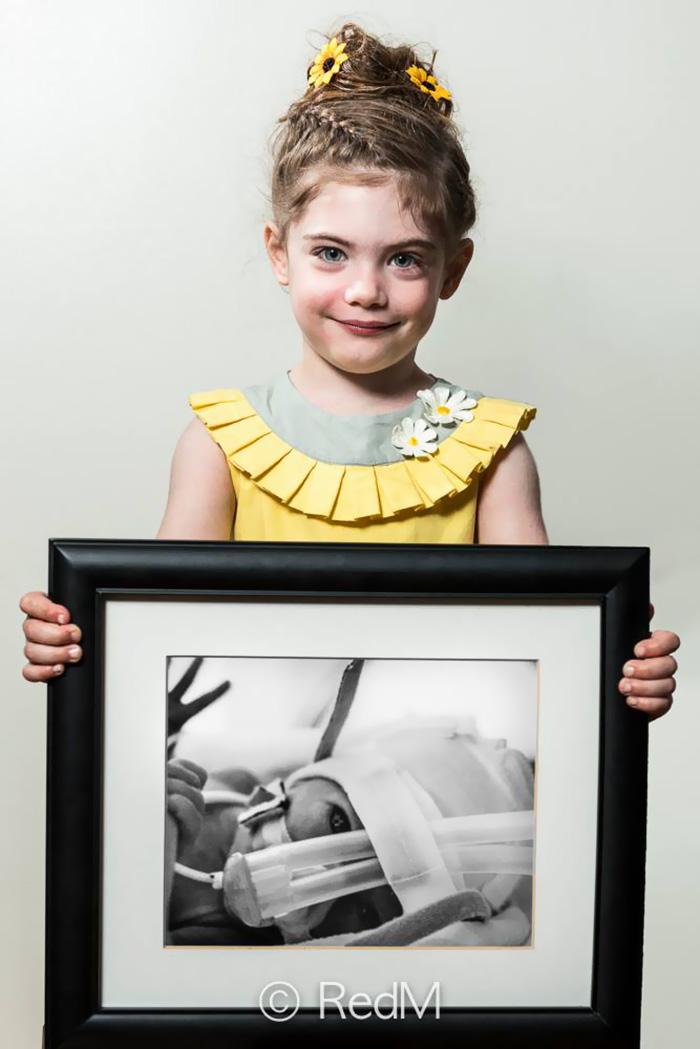 fotos de bebes prematuros antes y ahora 2