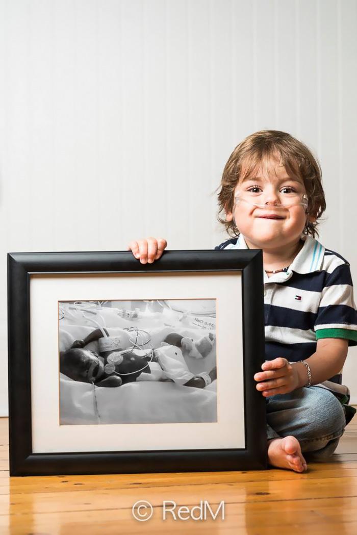 fotos de bebes prematuros antes y ahora 4