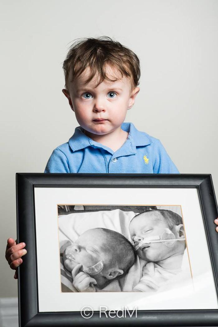 fotos de bebes prematuros antes y ahora 5