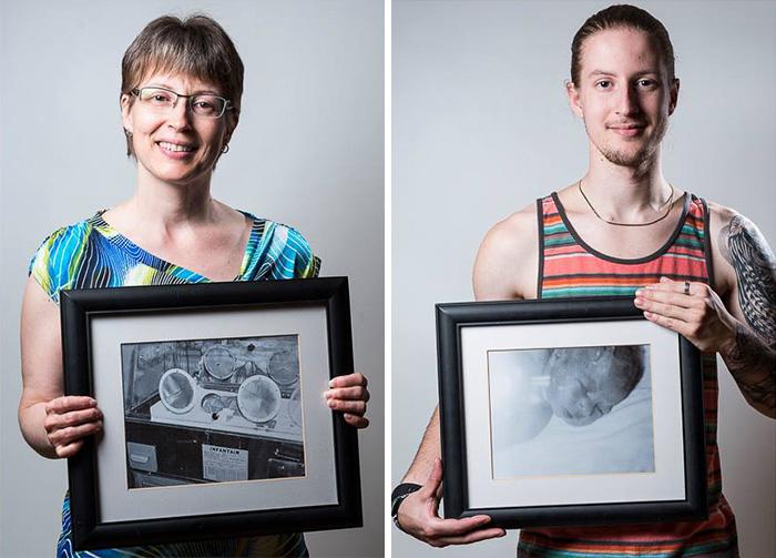 fotos de bebes prematuros antes y ahora 6