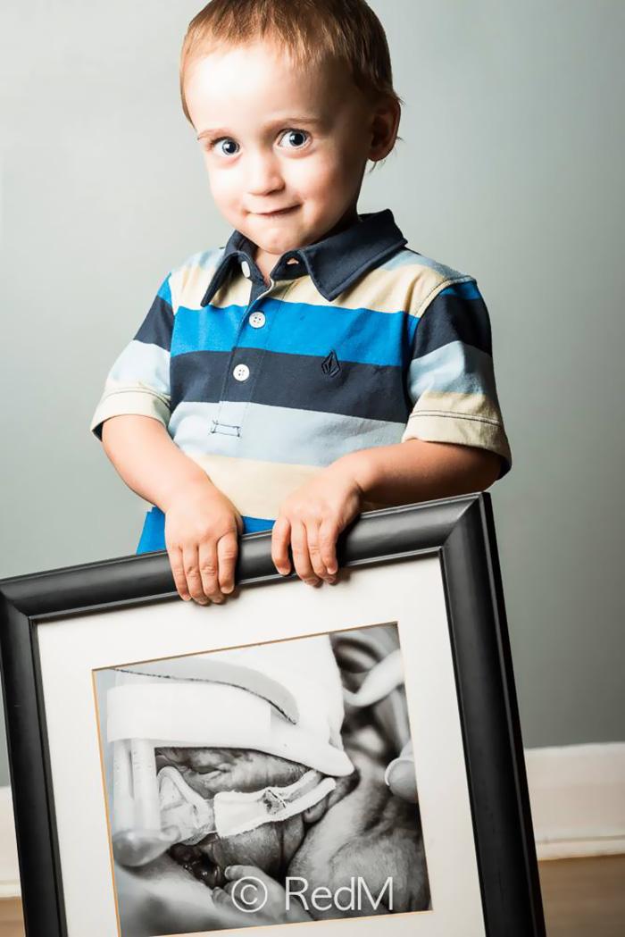 fotos de bebes prematuros antes y ahora 7