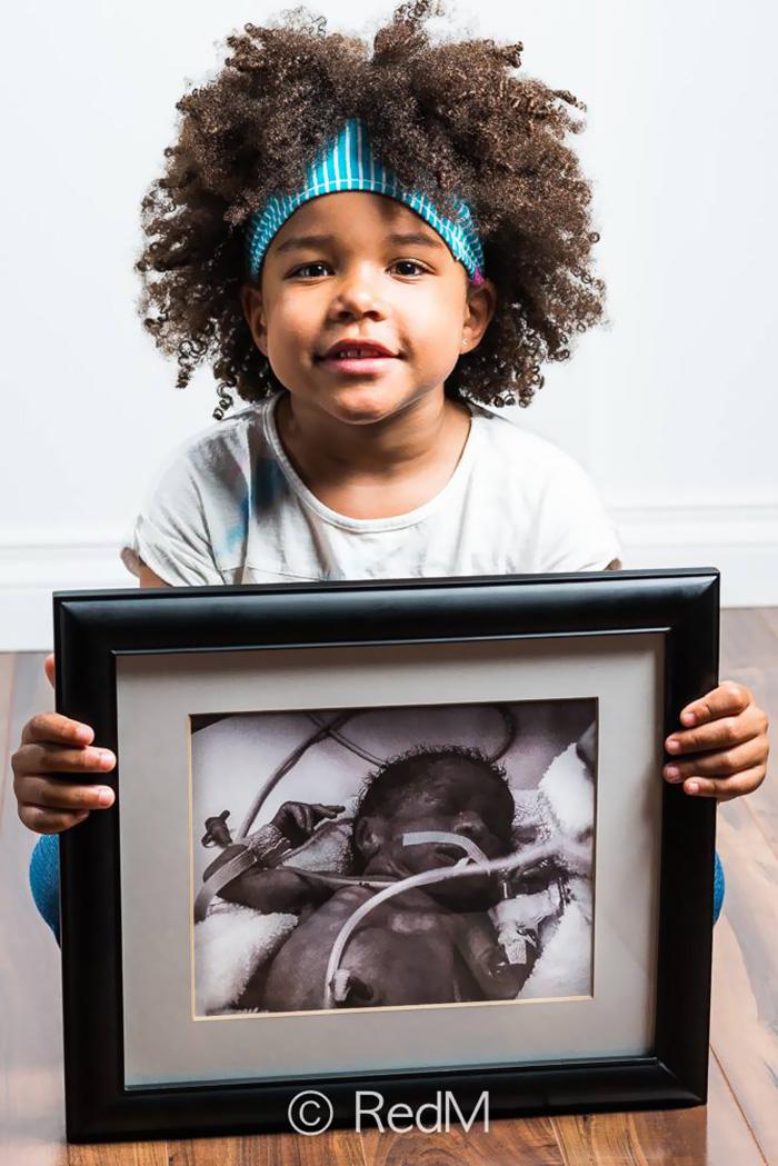fotos de bebes prematuros antes y ahora 8