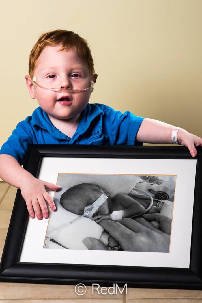 fotos de bebes prematuros antes y ahora 9