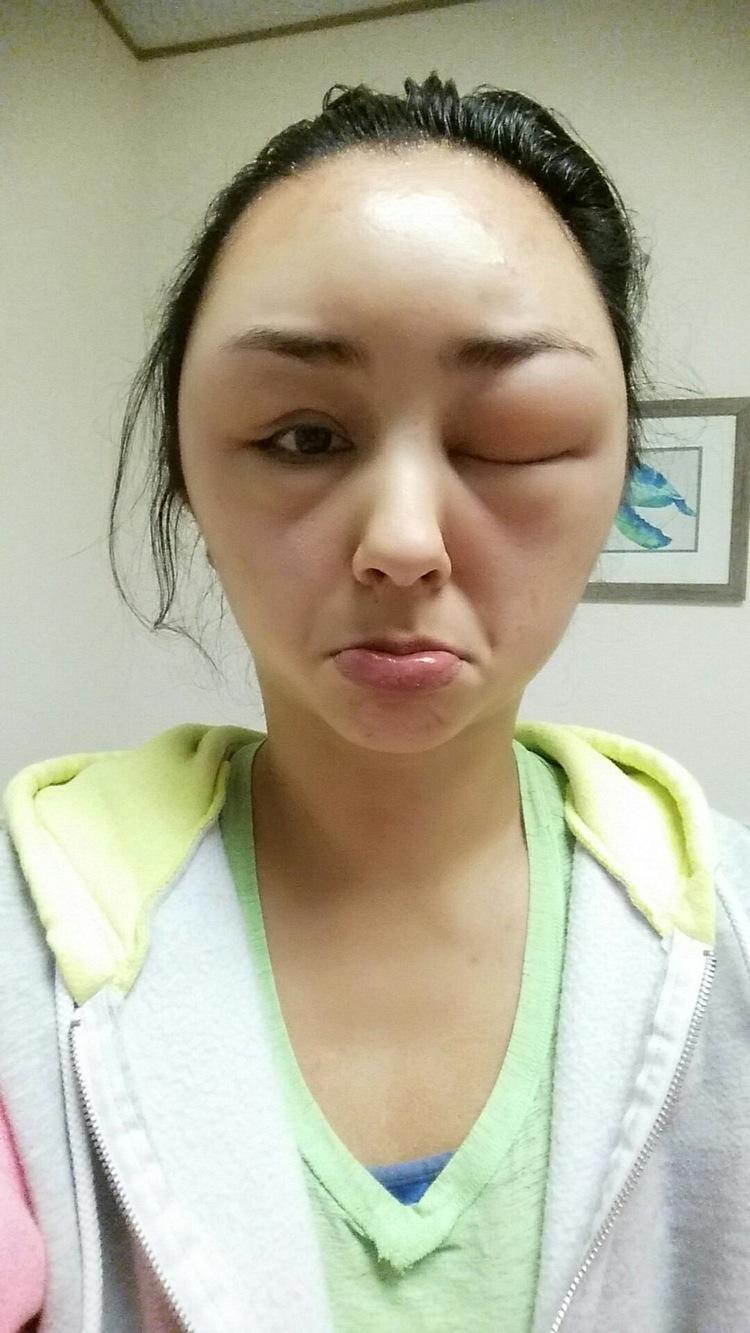 reaccion alergica al tinte del pelo 2