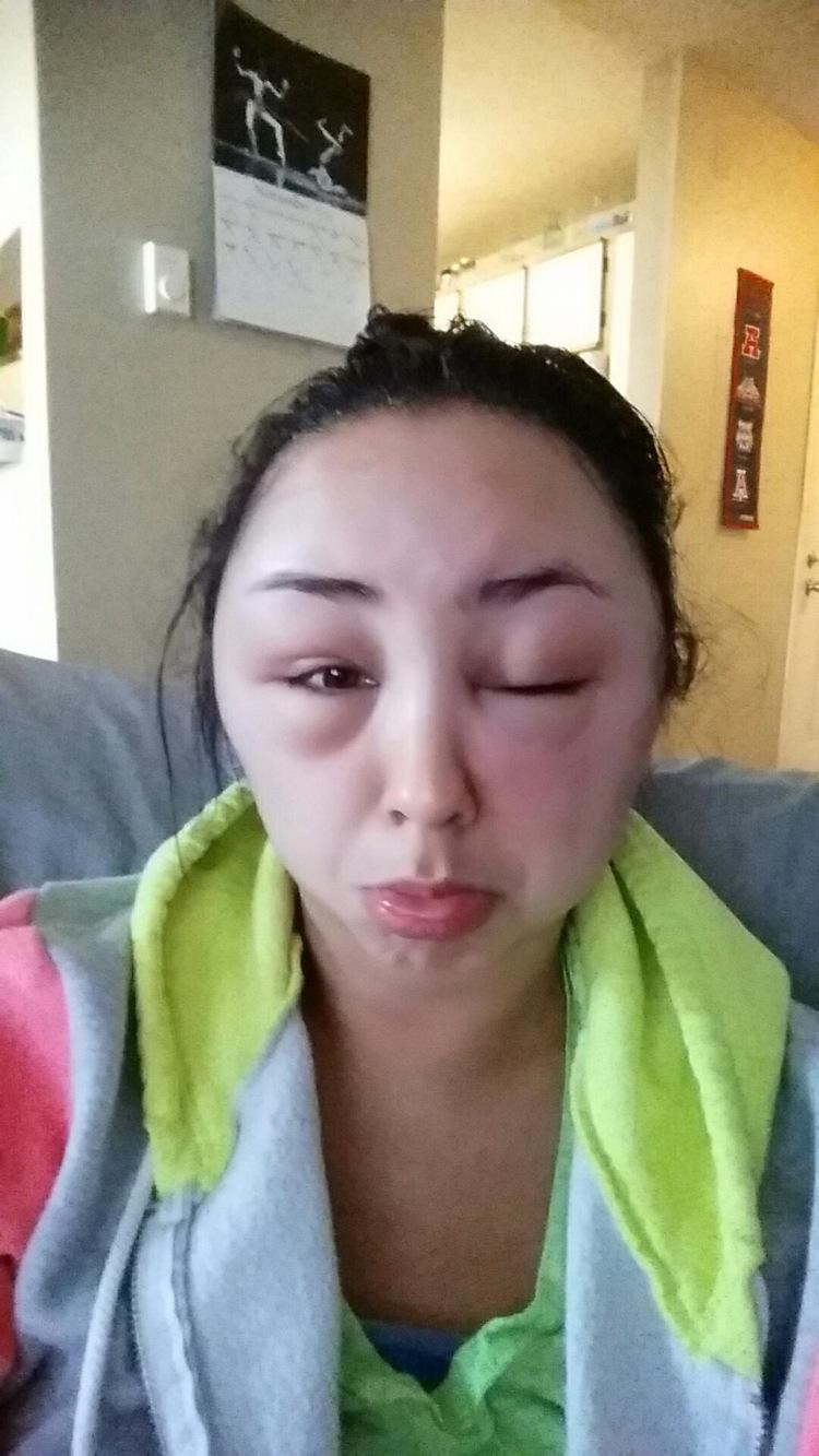 reaccion alergica al tinte del pelo 4