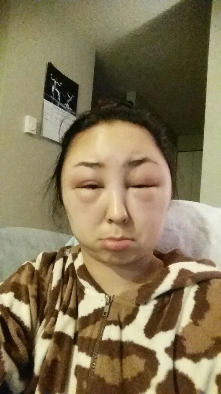 reaccion alergica al tinte del pelo 5