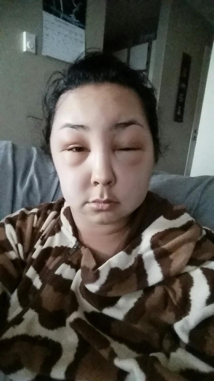 reaccion alergica al tinte del pelo 6