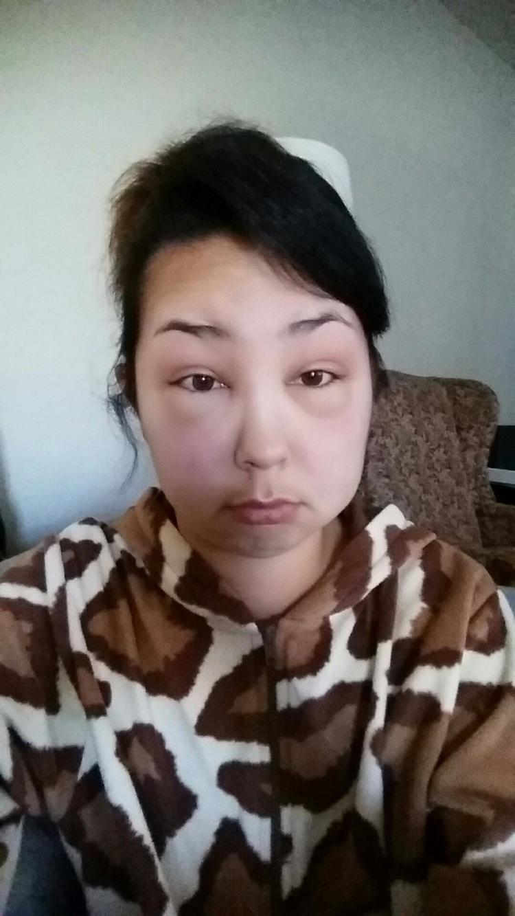 reaccion alergica al tinte del pelo 7