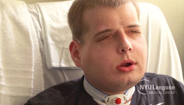 transplante rostro 2