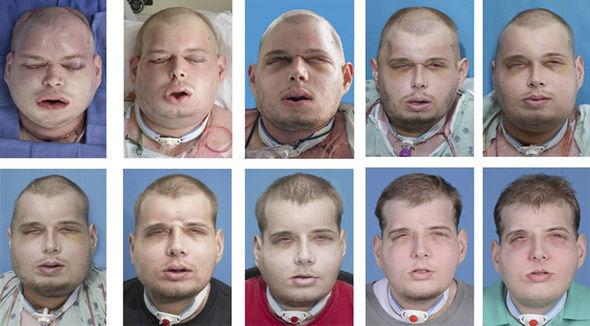 transplante rostro 3