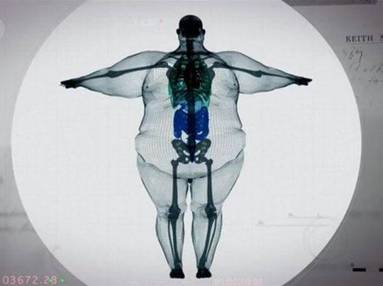 rayos X persona obesa