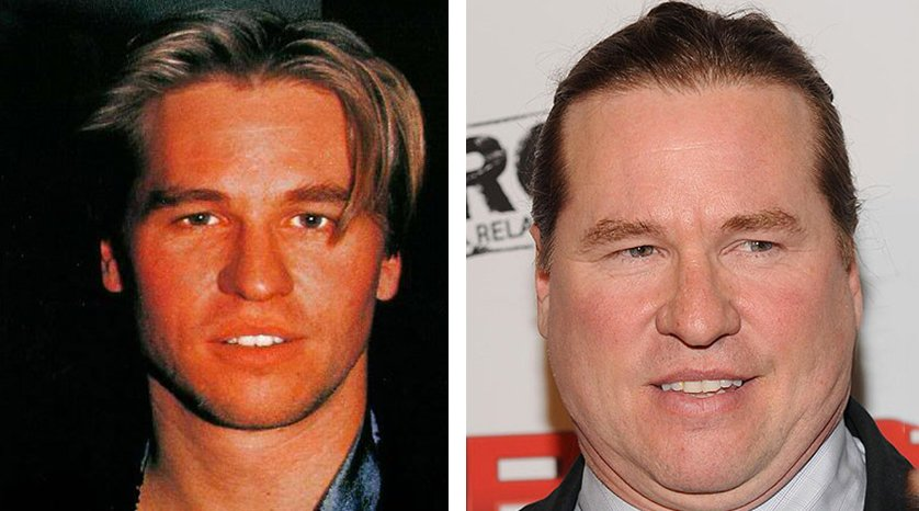 val-kilmer-antes-despues