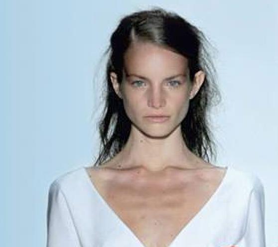 modelo anorexia 4