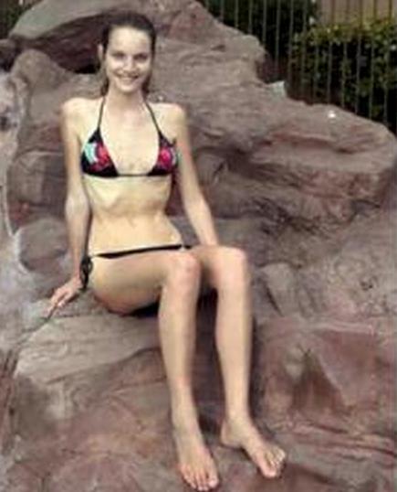 modelo anorexia 6