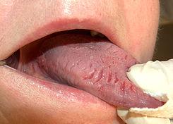 9 signos corporales de problemas nutricionales