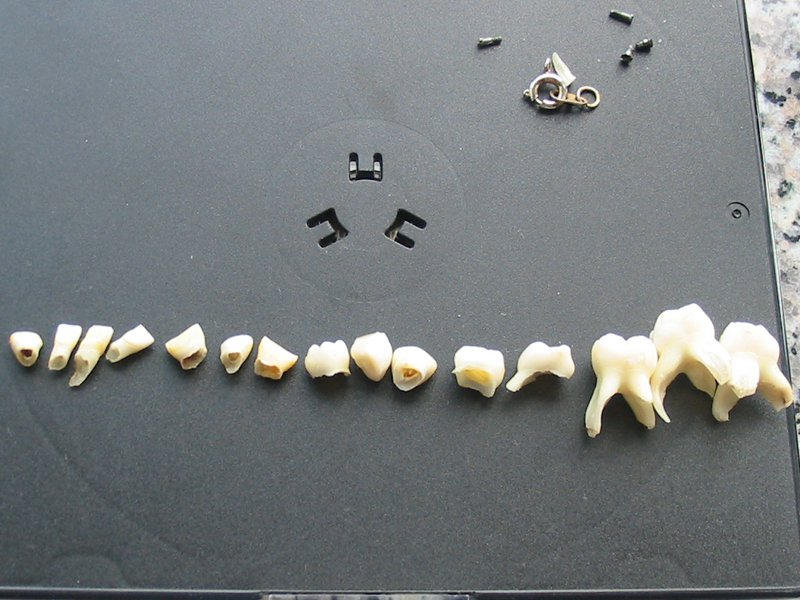 celulas_madre_dentales_2