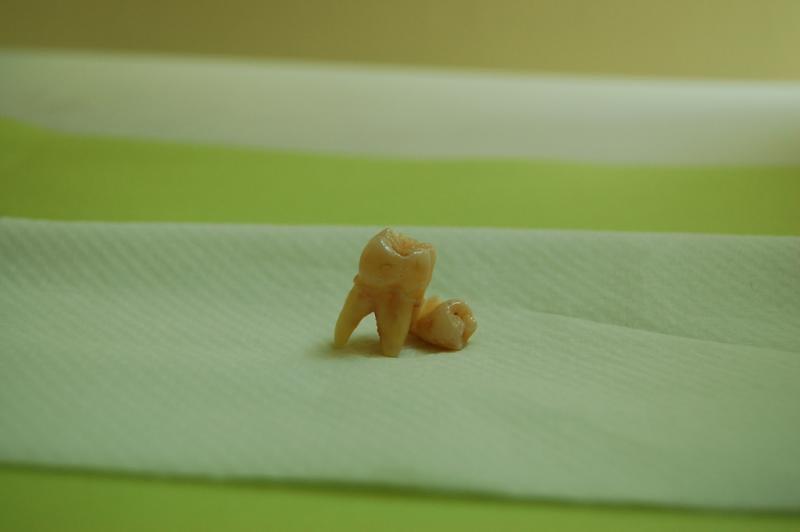 celulas_madre_dentales_3