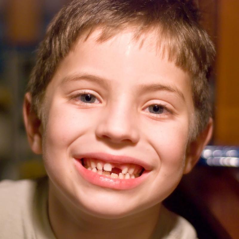 celulas_madre_dentales_5