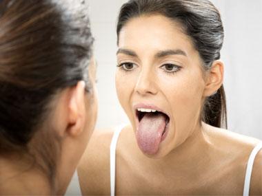 9 signos en la lengua pueden decir mucho sobre nuestra salud