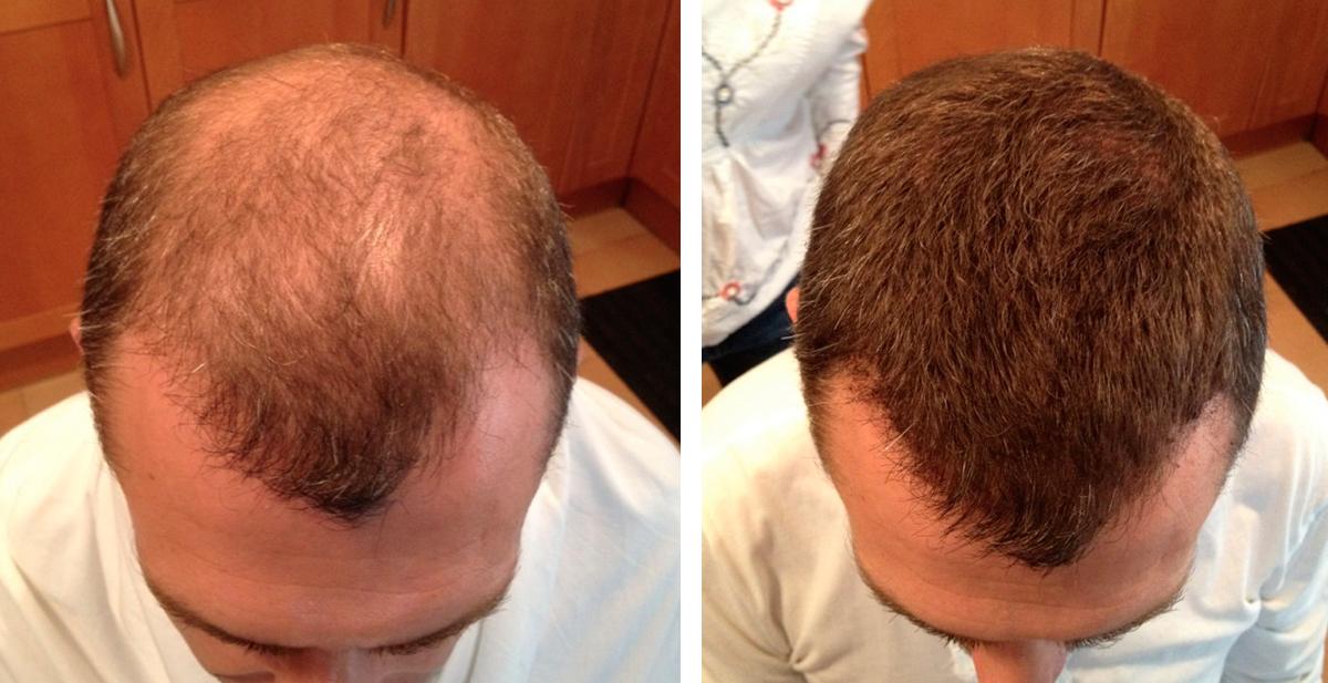 microfibras de pelo, la solución a la calvicie y a las entradas