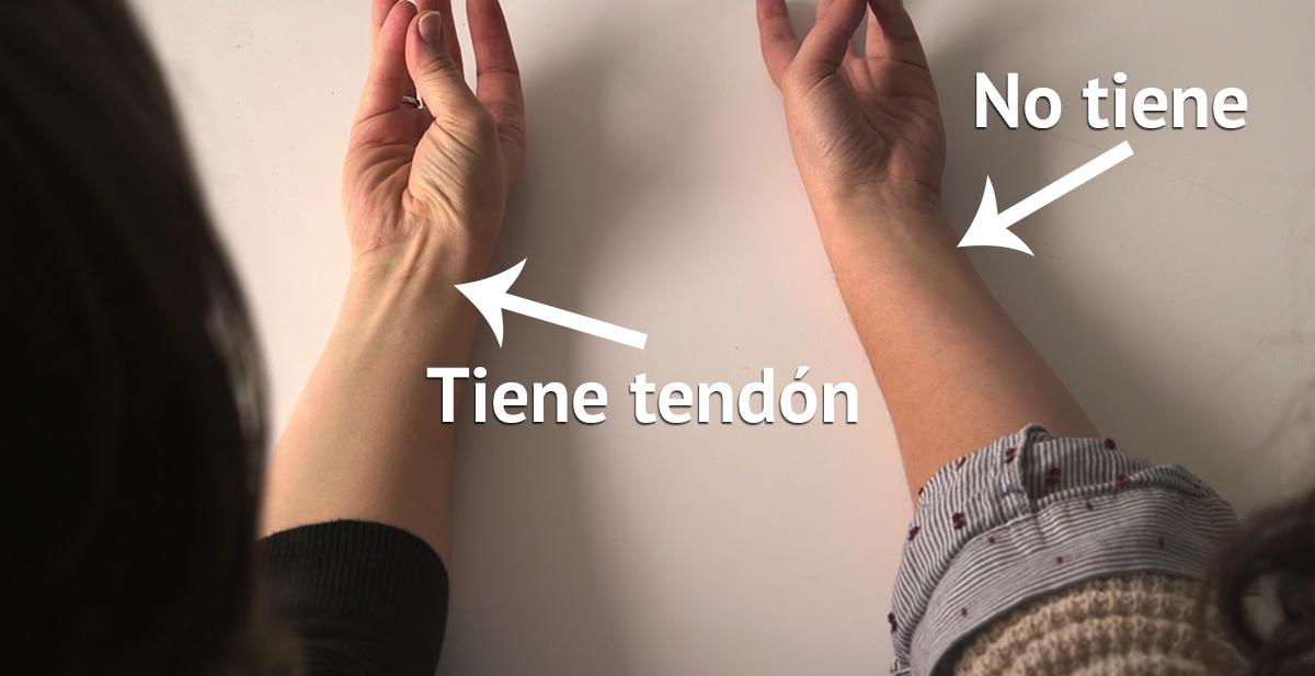 tendon-mano-antebrazo