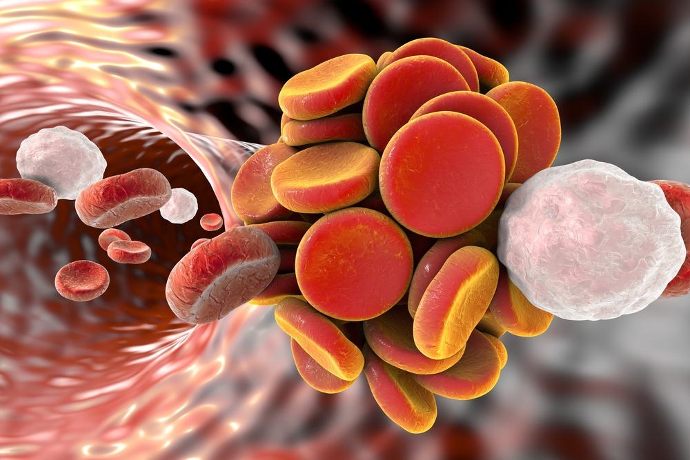 coagulo trombosis 1
