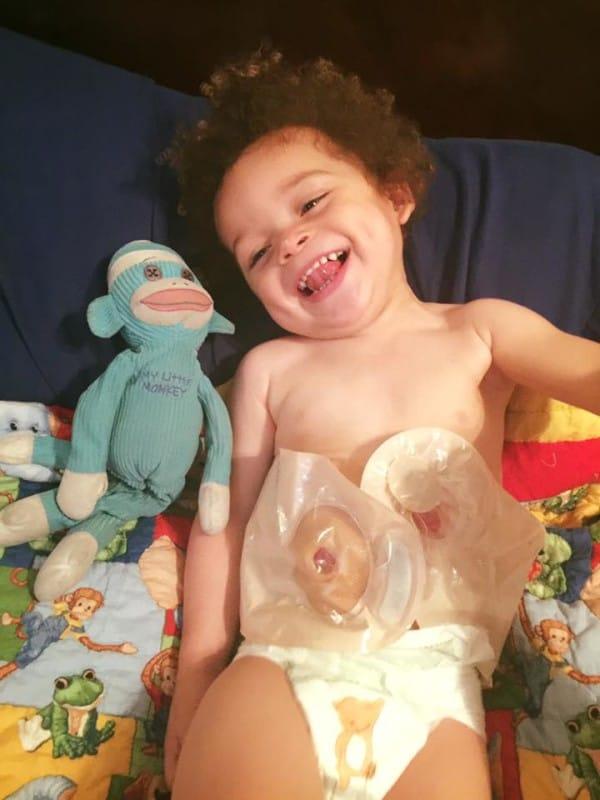 colostomia bebe 6
