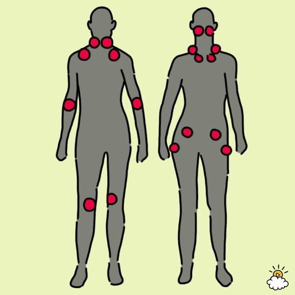 fibromialgia_3