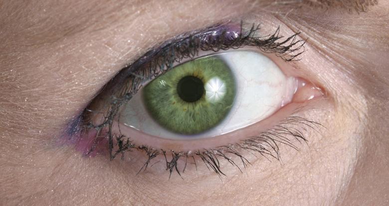 colores-ojos-raros