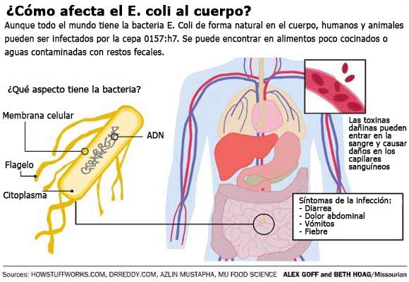 como afecta el e coli al cuerpo