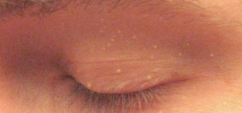 labios resecos con puntos blancos
