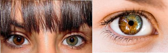 heterocromia (1)