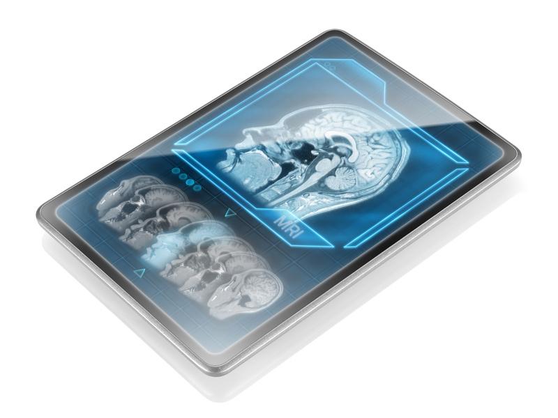 nuevo tratamiento contra el alzheimer por ultrasonidos 4