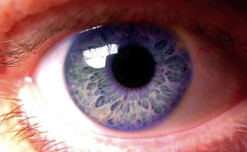 Los 8 colores de ojos más raros del mundo
