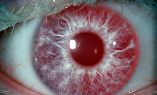 ojos raros 9