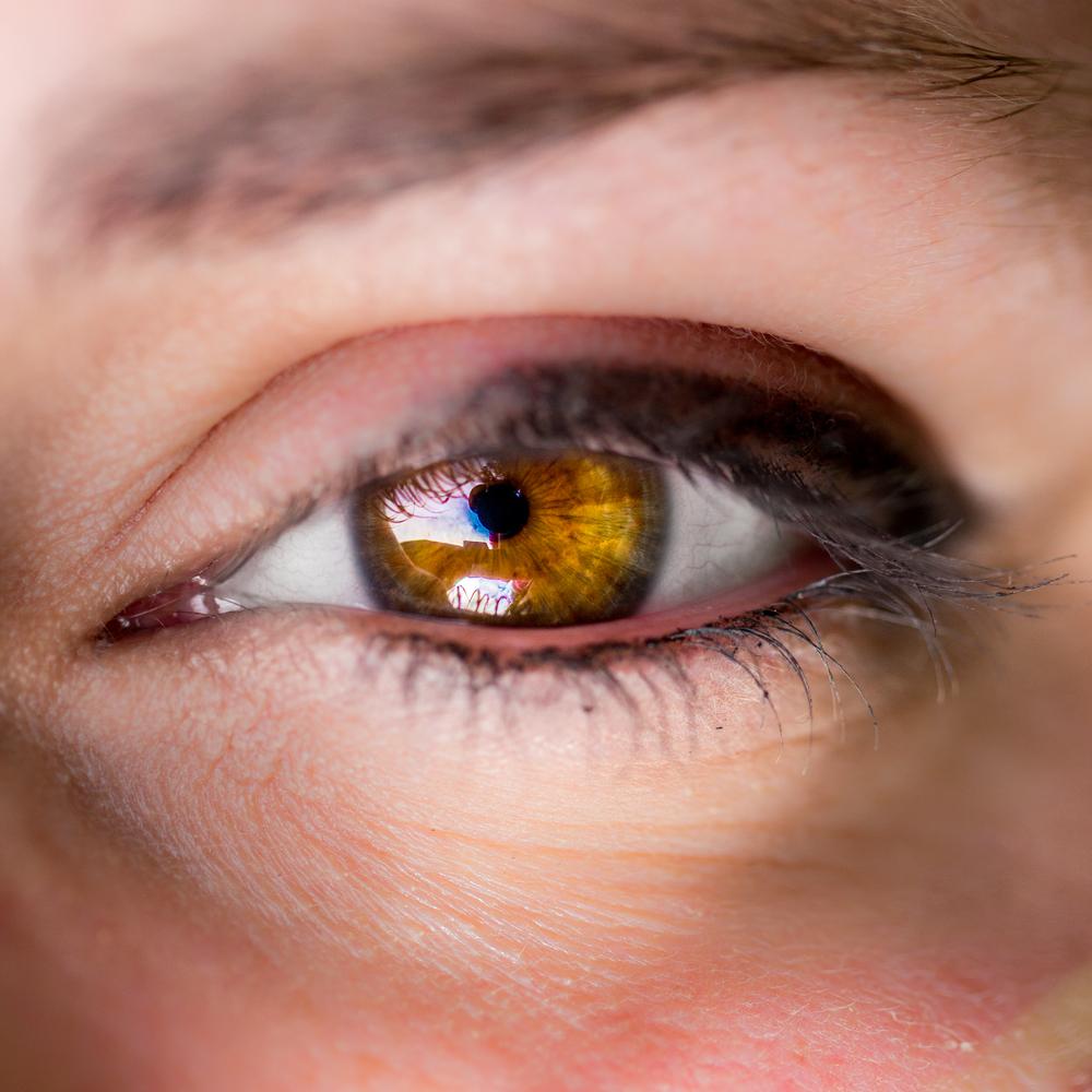 ojos raros mas1
