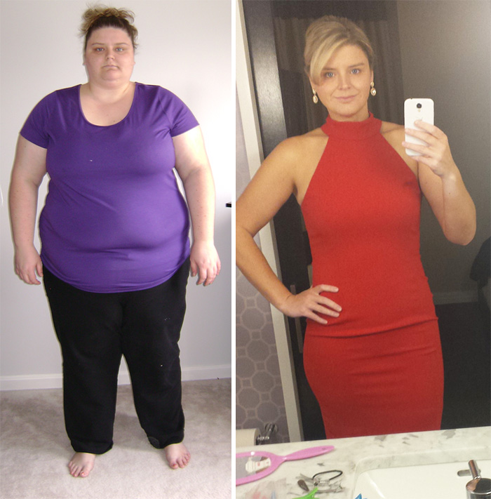 Cambios por perdida de peso
