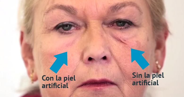 piel-artificial