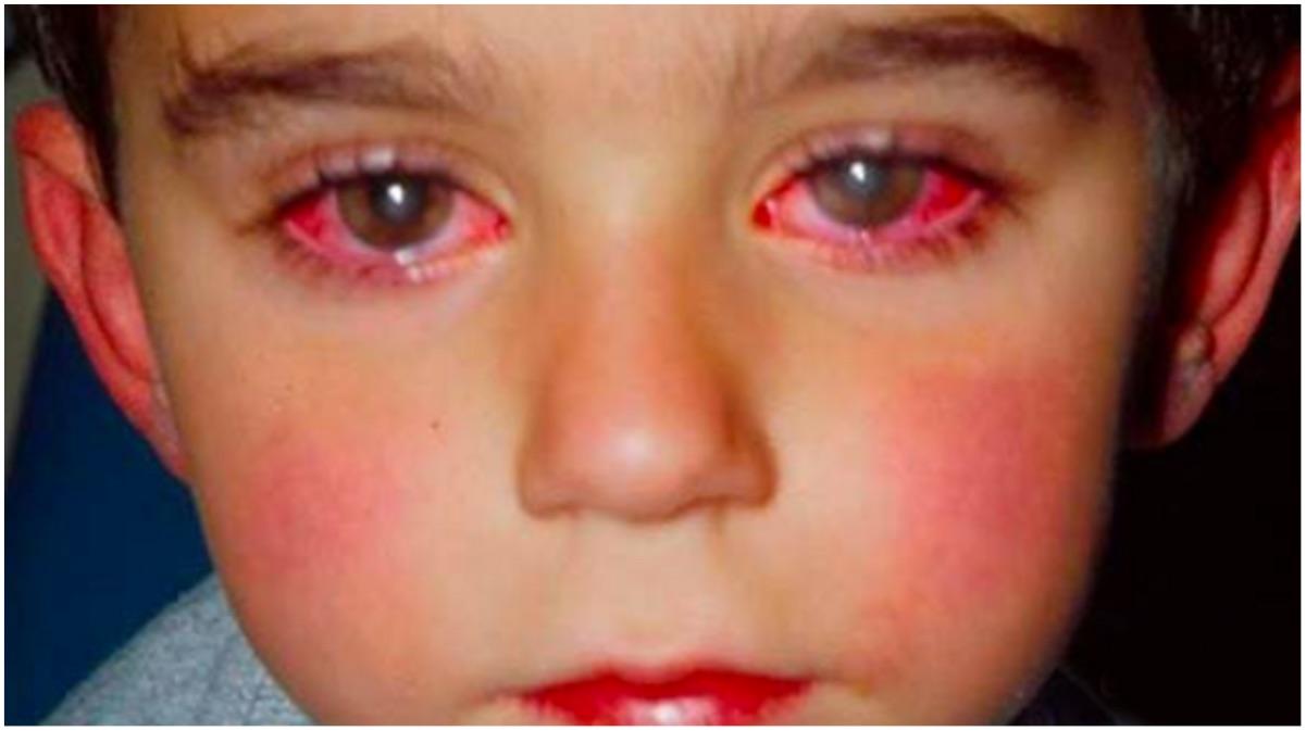portada ceguera laser