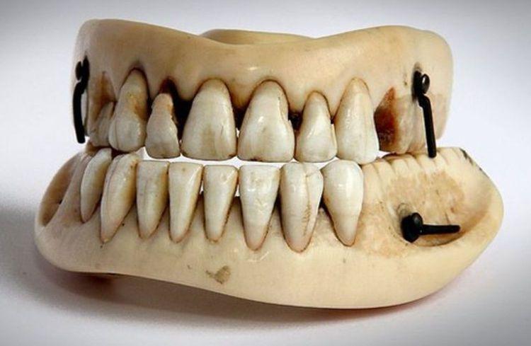 Dentadura antigua fabrica a partir de dientes de Waterloo